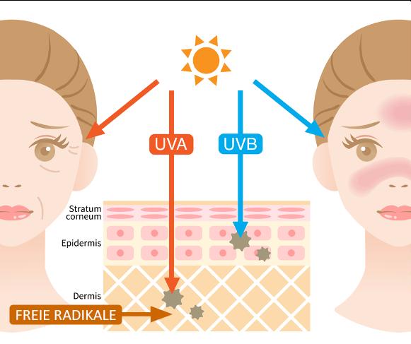 Schaubild UV-Strahlung und Haut